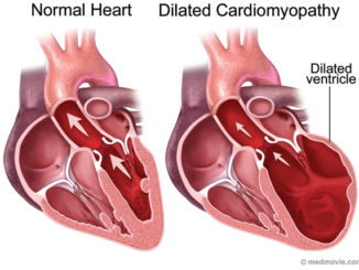 Looking for the source of dilated cardiomyopathy gene appear breakthroughs