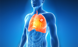 Treatment of advanced non-small cell lung cancer