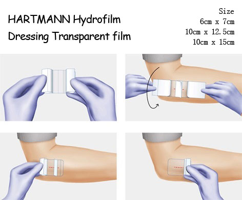Hartmann Hydrofilm Wound Transparent Film