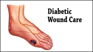 Treat non-healing wounds caused by diabetes